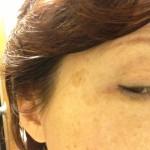 目の横の大きなシミがどんどん薄くなっています!