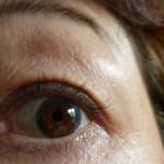 乾燥肌、アレルギー肌のみどり様の変化 育毛効果