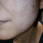 アトピー肌、敏感肌の良子様の変化