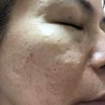 久仁子様報告2/7 改善されたお肌を保っています。