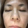 敏感肌久仁子様5ヶ月間の大きなお肌の変化