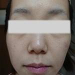 毛穴の開き小鼻のぶつぶつに悩むゆうか様からの報告