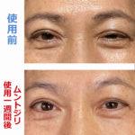 A.K様の眼瞼下垂の目の変化