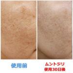 【しみ・しわ・乾燥】秋の肌に最高級美容液ムントジリが最大22%引き!